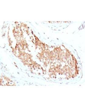 IHC testing of FFPE human testicular carcinoma with ALDH1 antibody (clone AHDH1-1).