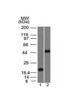 Western blot testing of 1) human partial recombinant protein and 2) human Raji cell lysate with PAX8 antibody (clone PAX8/1492). Predicted molecular weight of isoforms 1-5: 31, 35, 42, 43 and 48 kDa, respectively. PAX8 can also be observed at ~62 kDa.