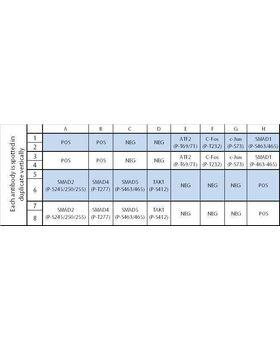 Human TGF beta Phosphorylation Array C1 map