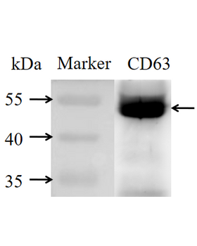 To confirm the efficacy of the isolation of the exosomes, 30 μg of exosomal proteins were used for the detection of CD63 (an exosomal protein marker) by Western blotting.