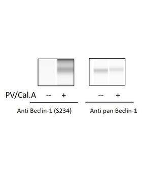 Jurkat cells were treated with Calyculin A and Pervanadate. Cell lysates were analyzed using this phosphoELISA and Western Blot.