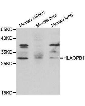 Western blot analysis of extracts of various cell lines, using HLA-DPB1 antibody.