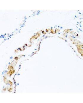 Immunohistochemistry of paraffin-embedded rat lung tissue using PHPT1 antibody at dilution of 1:100 (x40 lens).