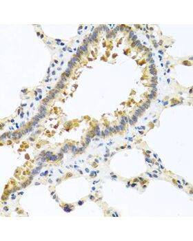 Immunohistochemistry of paraffin-embedded rat lung using CPA1 antibody at dilution of 1:100 (40x lens).