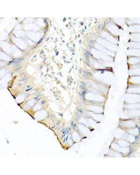 Immunohistochemistry of paraffin-embedded human colon using CPA1 antibody at dilution of 1:100 (40x lens).