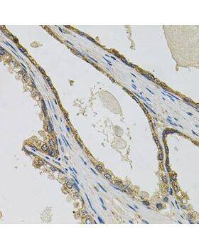 Immunohistochemistry of paraffin-embedded human prostate using PTK7 antibody at dilution of 1:100 (x40 lens).
