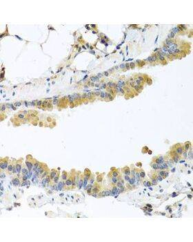 Immunohistochemistry of paraffin-embedded mouse lung using CPA1 antibody at dilution of 1:100 (40x lens).