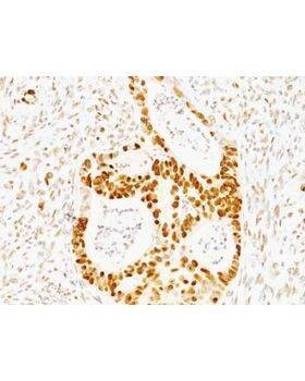Formalin-fixed, paraffin-embedded human colon carcinoma stained with p53 antibody (TRP/817)